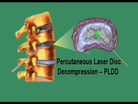 PLDD - Percutaneous Laser Disc Decompression