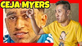 Bryant Myers se encojona 😡 Doctora da malas noticias 😱 Cejas Myers