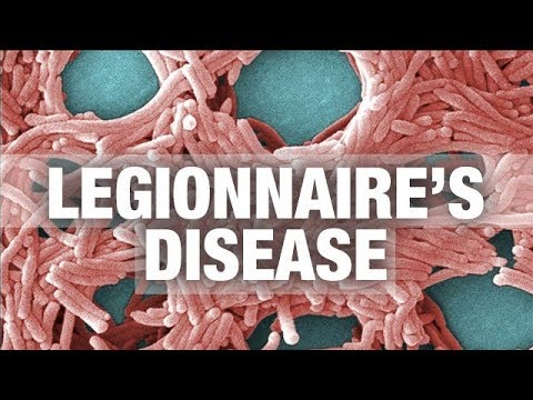 How do you know if you have Legionnaires Disease.. Diagnosis & Treatment