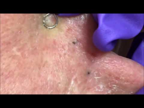 Blackhead Removal -  You'll like to see :P