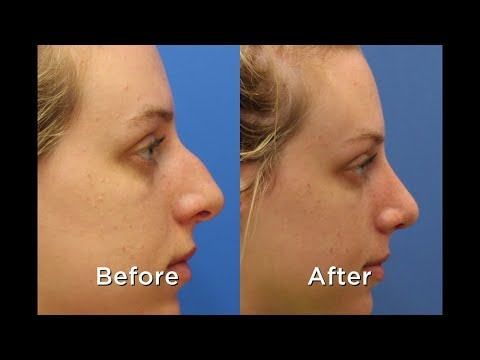 Rhinoplasty in Wilmington NC with Deidra Blanks, MD