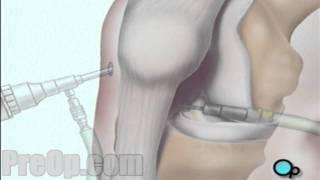 Anterior Cruciate Ligament Arthroscopic Repair Surgery PreOp® Patient Education