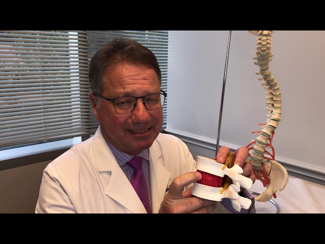 Differences Between Herniated, Bulging, and Prolapsed Disks  - Dr. Craig C Callewart
