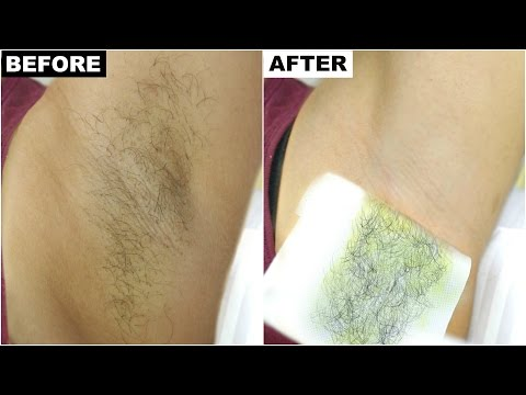Dark Underarms & Armpit Hair Removal - BEST & PERMANENT Solution | Anaysa