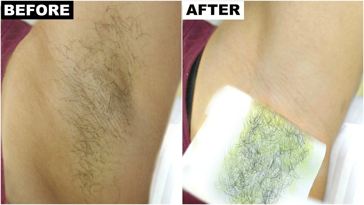 Dark Underarms Armpit Hair Removal Best Permanent Solution