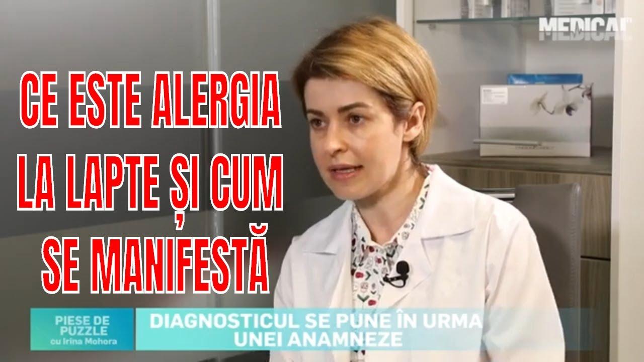 Paraziti intestinali alergii