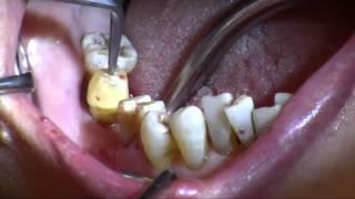 大人 の 歯 グラグラ