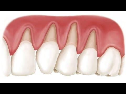 К чему снится во сне зубы болят