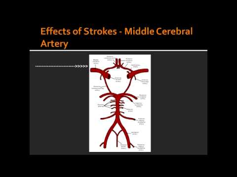 Effects of Strokes - Middle Cerebral Artery - YouTube