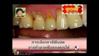 Sponge - แปรงฟัน 29Mar12