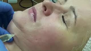 Курс: Кавитация, RF  (разрушение лишнего жира, уплотнение тканей) и Липолитическая Мезотерапия.