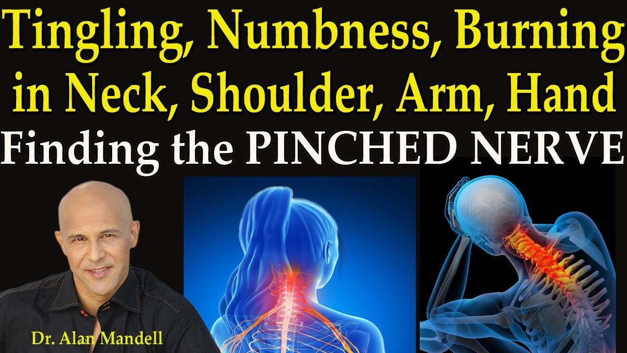 Tingling Numbness Burning In Neck Shoulder Arm And Hand