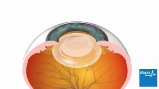 How Cataract Surgery Carried Out