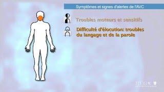 Symptômes et signes d'alerte de l'AVC