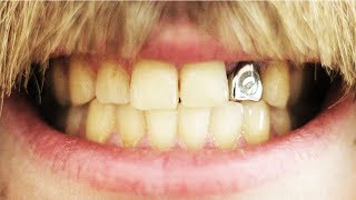 Кастомный зуб