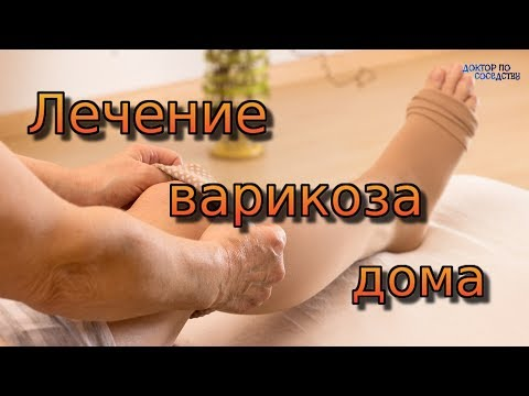 ЛЕЧЕНИЕ ВАРИКОЗА В ДОМАШНИХ УСЛОВИЯХ / TREATMENT OF VARICOSE VEINS AT HOME
