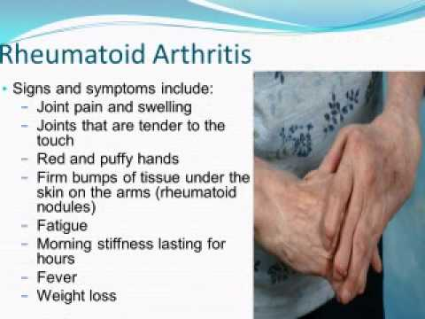 Nursing School Lecture - Nursing Care of Musculoskeletal Disorders
