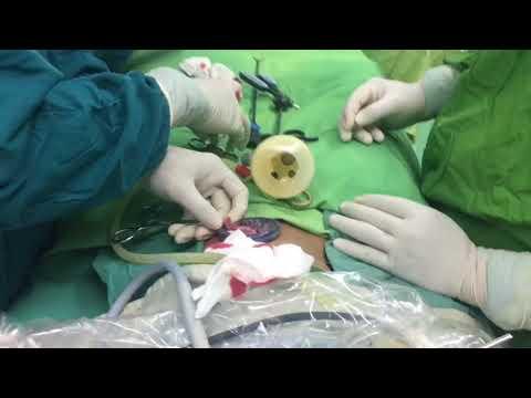 Operasi usus buntu tanpa bekas luka