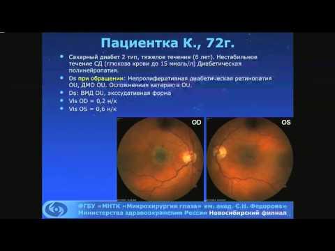 Чехова Т.А.Дифференциальная диагностика возрастных и диабетических поражений сетчатки.