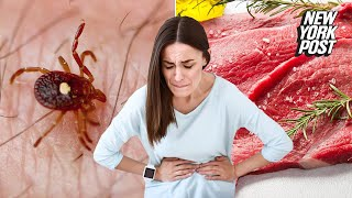 One bite from this tick could turn you into a vegetarian | New York Post you 検索動画 23