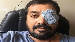 Anurag Kashyap Punched By An MMA Fighter, Hurts One Eye