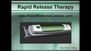 16 - Rapid Release