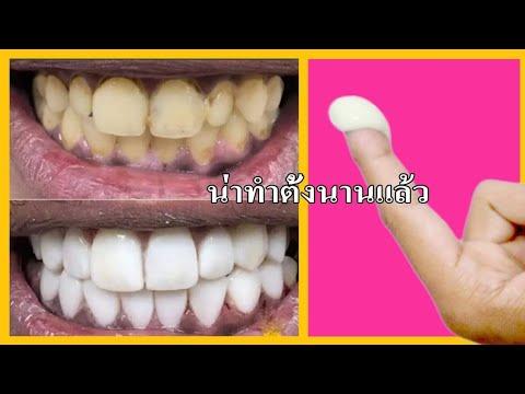 ฟันเหลือง ปากเหม็น ควรทำ จบปัญหา กลิ่นปาก ฟันเป็นคราบ ด้วยสูตรนี้