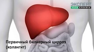 Первичный билиарный цирроз (холангит)