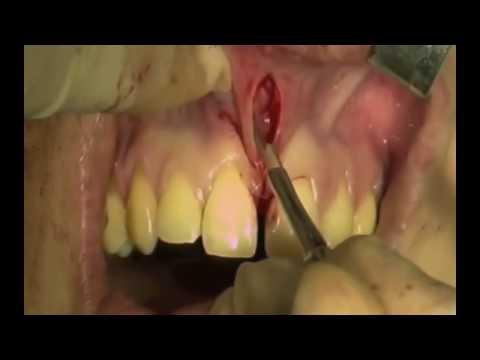 Frenectomy Of Grossly Hypertrophic Frenum + Adventitious Frena