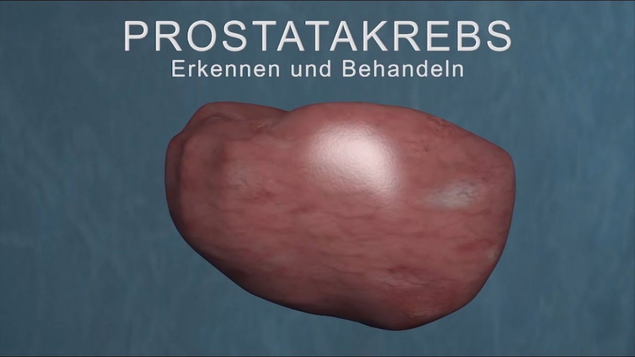 prostatakrebs vorsorgeuntersuchung