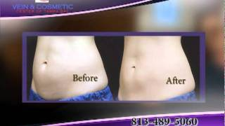 Coolsculpting_Vein & Cosmetic Center of Tampa Bay Thumbnail