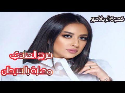 الكويتية فرح الهادي مصابة بورم حميد وتطمن جمهورها