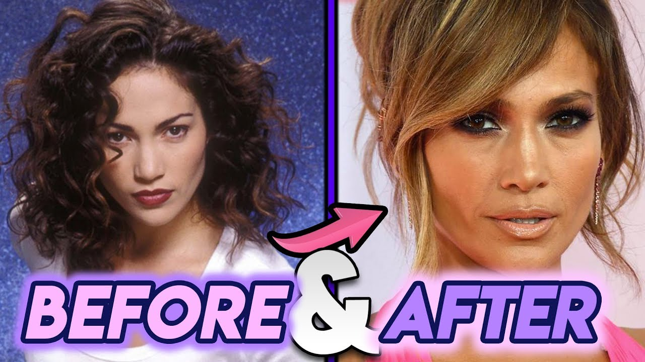 Jennifer Lopez Before After Plastic Surgery Rumors Youtube