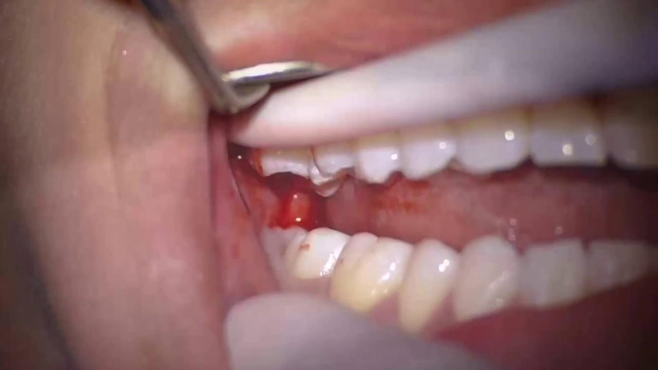 Maxillary Third Molar Extraction Youtube
