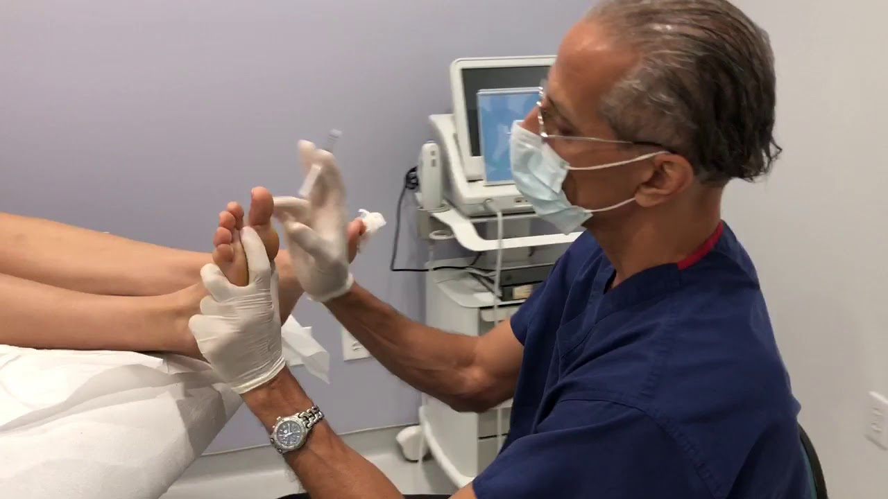 Botox For Foot Pain