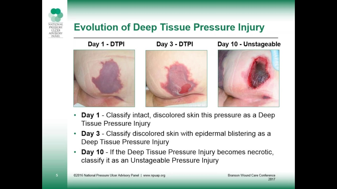 Deep Tissue Pressure Injury: A Dangerous Form of Pressure Ulcers 5/3/17-  slides only
