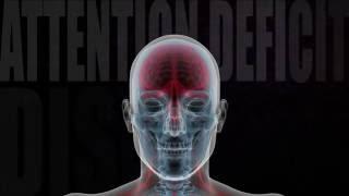 Brain And Neurotransmitters