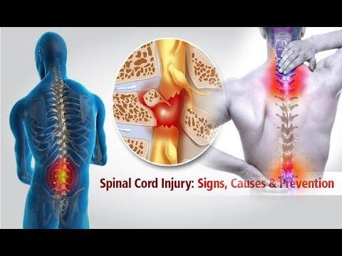 Hello Doctor - Spinal Cord Injury - शरीर प्यारालाइसिस कसरि हुन्छ (Dr Raju Dhakal - Eps 14)