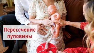 Пересечение пуповины  Третий период родов