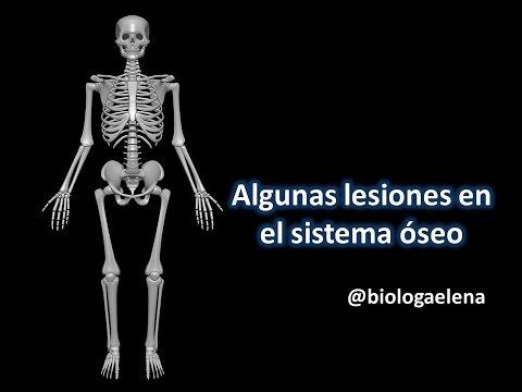 Algunas lesiones del sistema óseo