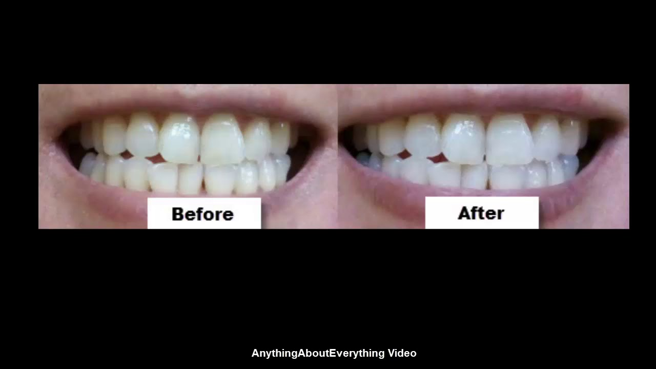 White Light Teeth Whitening System Honest Review Youtube