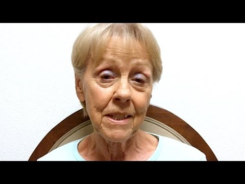 Dizziness, Vertigo, Balance Disorder due to Vestibular Ocular Disorder - Louise S