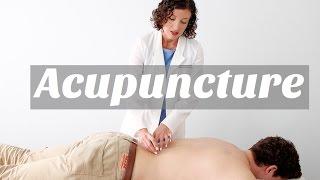 Acupuncture in Sarasota, FL - Lauren Grace Living