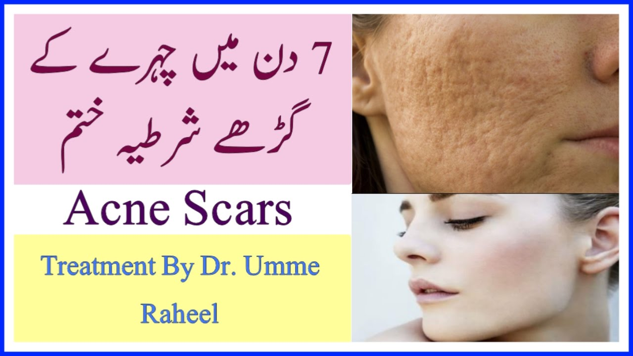 How to remove acne: useful tips 69