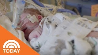 When A Child Has Congenital Heart Disease | TODAY thumbnail