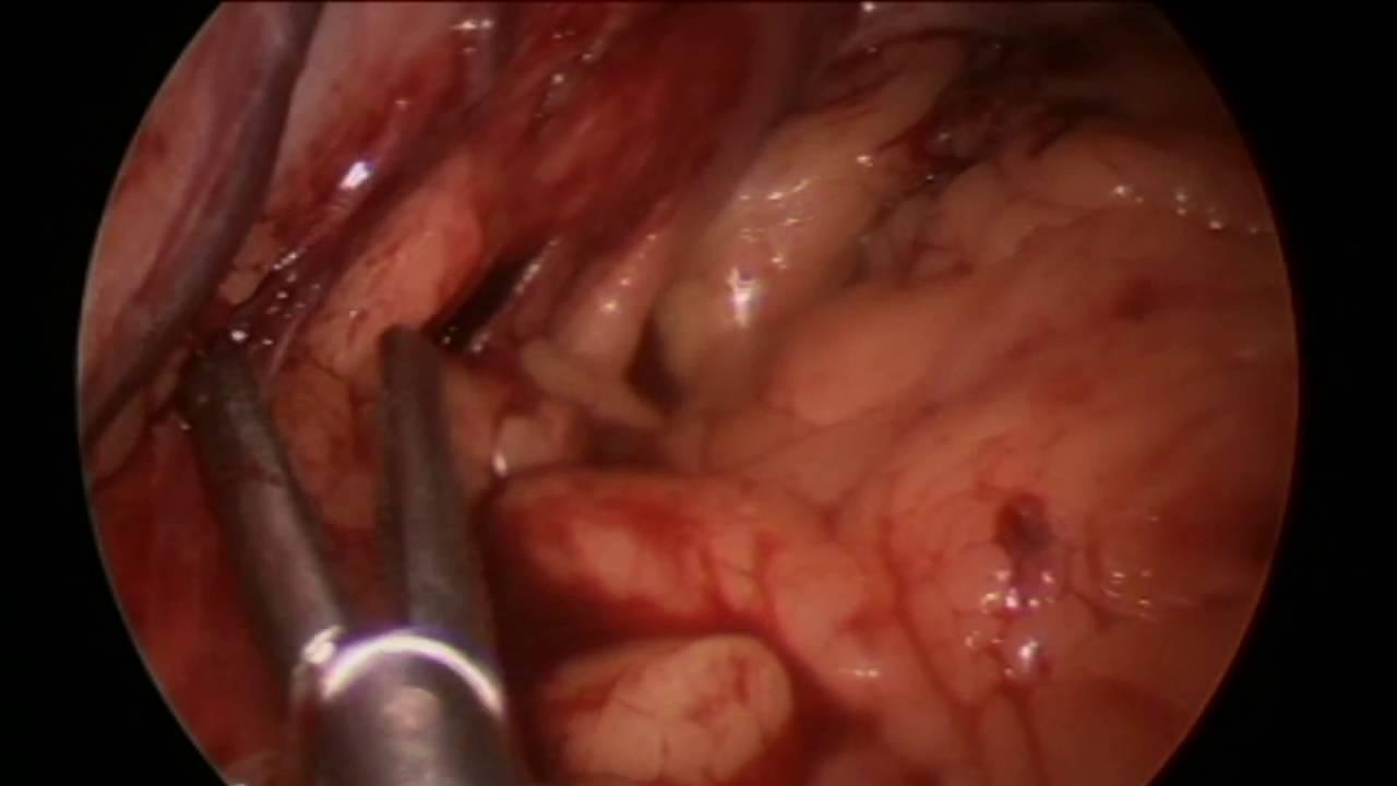 Download Prevention of Postoperative Sleeve Gastrectomy Leaks