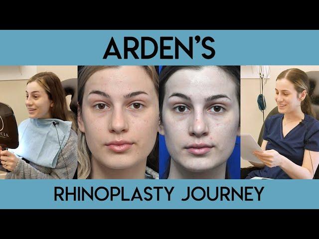 Arden's Rhinoplasty Journey