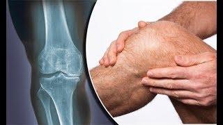 كأس واحد يوميا معجزة في علاج إلتهاب المفاصل و هشاشة العظام علاج مضمون و طبيعي !