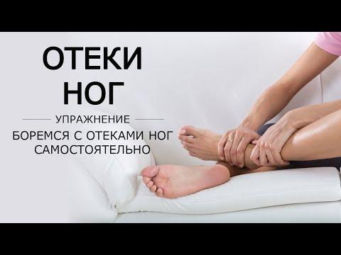Боремся с отеками ног самостоятельно при помощи упражнений.