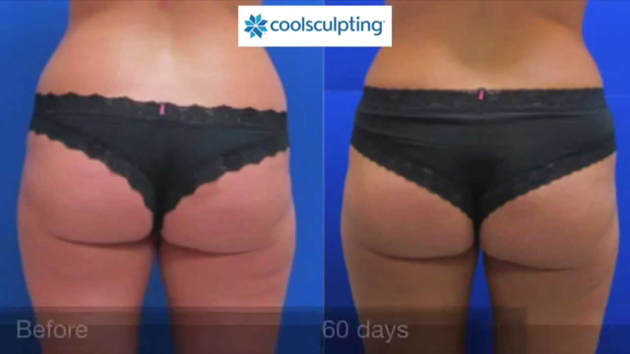 Does Coolsculpting Work On Thighs
